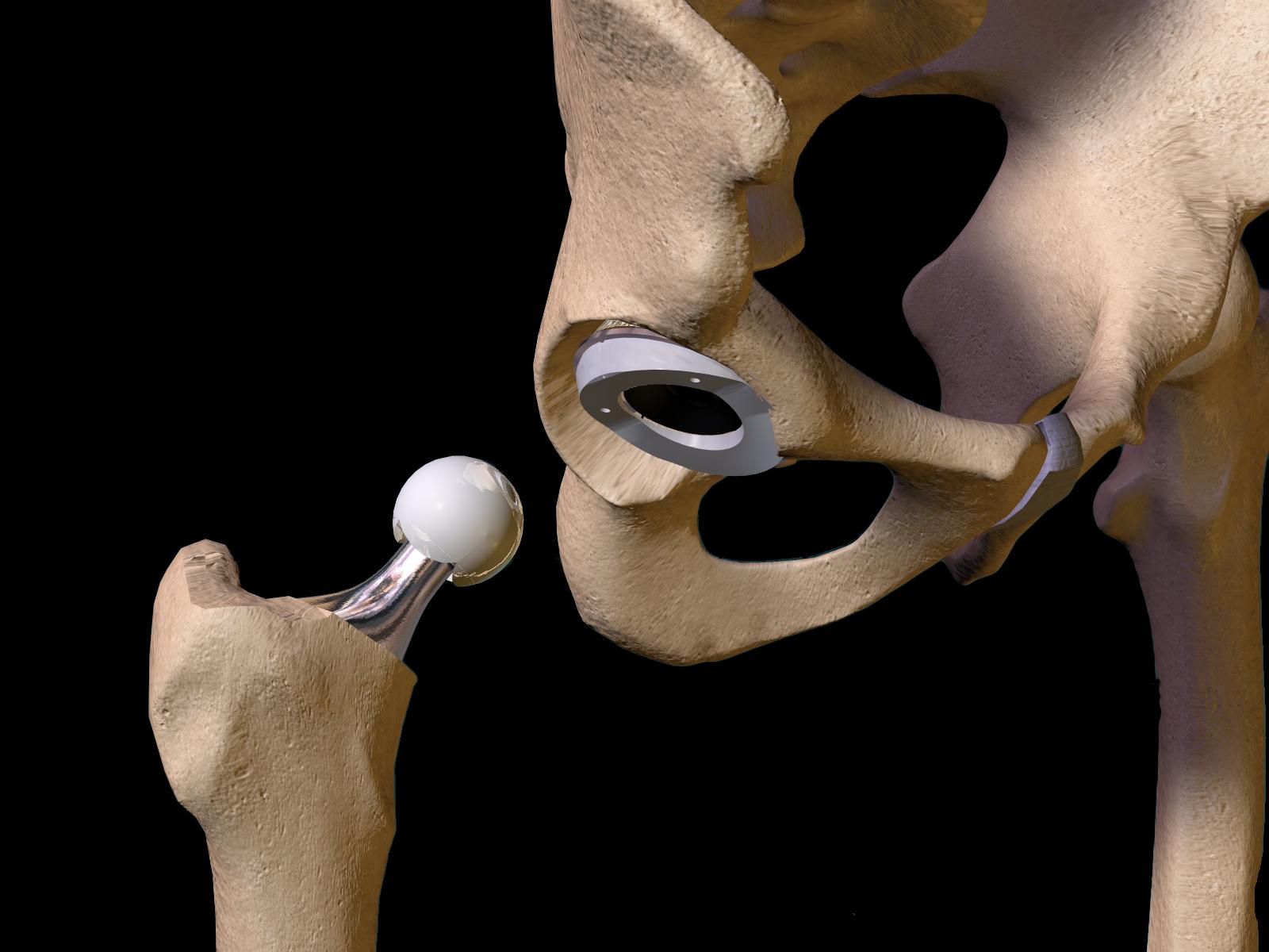 Рис.10. Эндопротезы тазобедренного сустава из различных материалов
