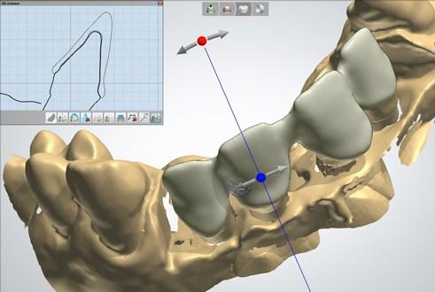 Рис.17. Виртуальное моделирование протезов.